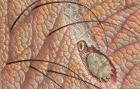 Подкожные вши у человека: могут ли паразиты жить под кожей головы или тела?