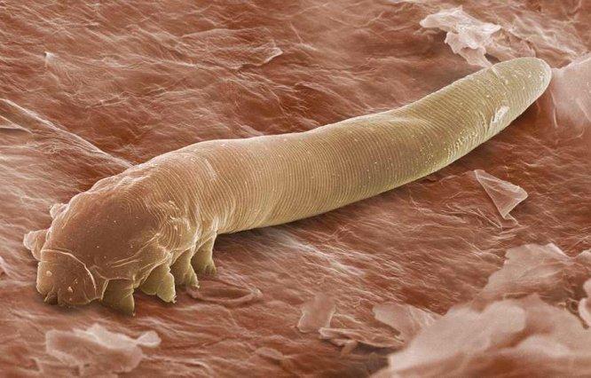 подкожные паразиты у человека атлас врача фото
