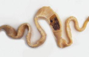 паразиты живущие в прямой кишке человека