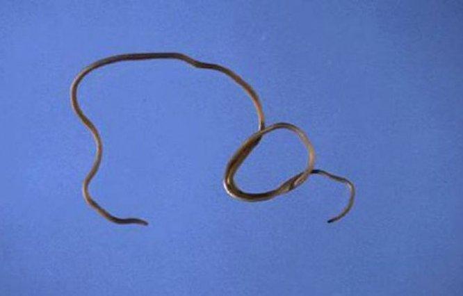 черви лямблии лечение
