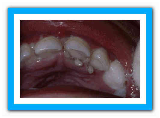 Черви в зубах правда или вымысел, консультации стоматологов, регулярная чистка зубов и обязательный врачебный профилактический контроль