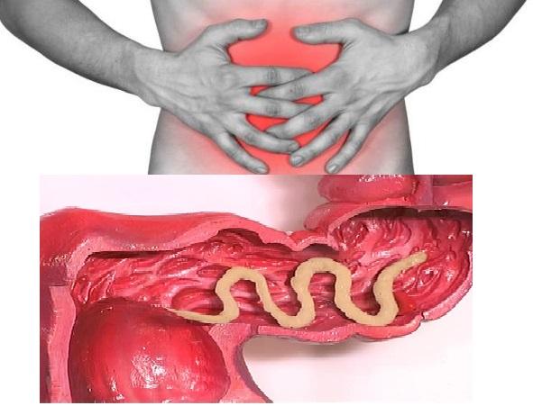 Паразиты у детей и взрослых  глисты,солитеры,аскариды,острицы,гельминты,черви в организме человека