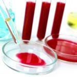 сдать кровь на анализ после дегельминтизации
