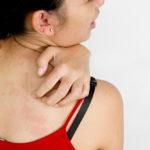 Описторхоз: симптоми у человека, передается ли и как виявить