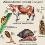 Печеночний сосальщик: фото, симптоми и лечение у человека