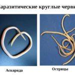 Круглие глисти у человека: фото и лечение гельминтов