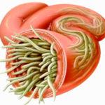 Аскариди: фото, симптоми и лечение организма у взрослих