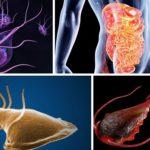 Простейшие паразити человека: лечение одноклеточних в теле людей