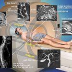 Компьютерная и магнитно резонансная томография