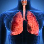 бронхит и пневмония при описторхозе
