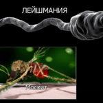 Средиземноморский висцеральный лейшманиоз