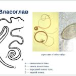 Види глистов у человека: фото разновидностей гельминтов