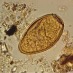 обнаружение яиц трематоды.