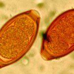 яйца и личинки гельминтов