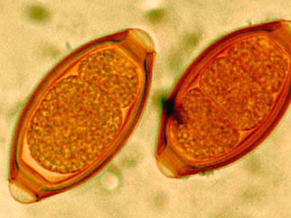 Кал на яйца гельминтов гемотест