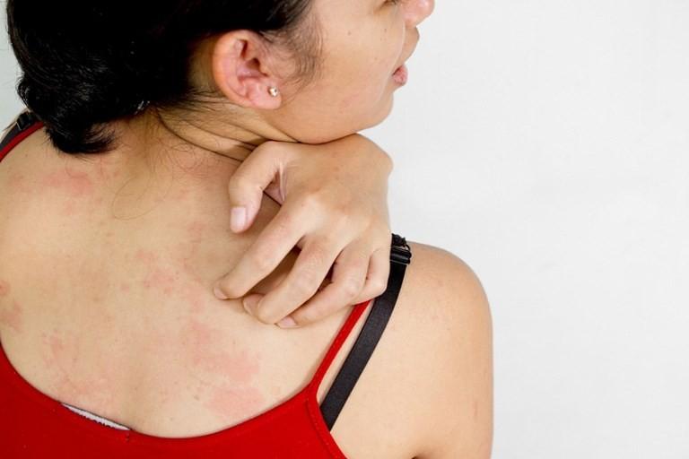 Лямблии у ребенка 2 года симптомы