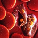 малярийный паразит