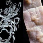 паразиты в организме человека широкий лентец.