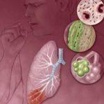 Возможные осложнения при стронгилоидозе