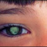 Поражение глаз при токсокарозе
