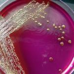 Диагностирование заболевания в лабораторных условиях