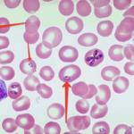 Бабезиоз у человека: симптоми, лечение и профилактика болезни