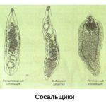 Гельминти: что ето такое у людей, фото и видео паразитов