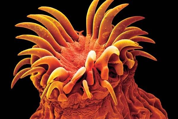 гомеопатия от паразитов в организме человека