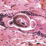 Анизакидоз человека: симптоми, фото и лечение, дозировка Тиабендазола