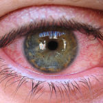 Паразити в глазах человека: симптоми и фото глазних глистов