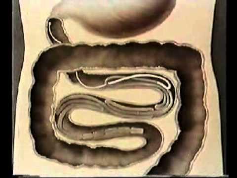 паразит солитер человека