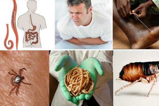 паразиты в желудке человека симптомы