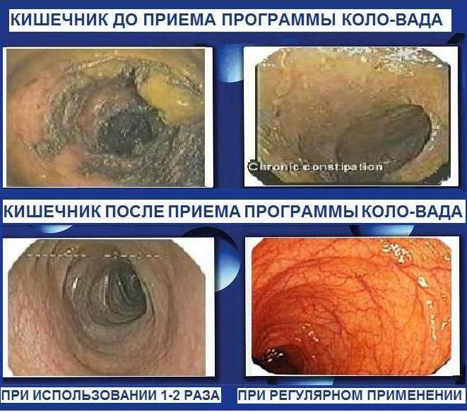 лекарство от паразитов в организме человека интохик