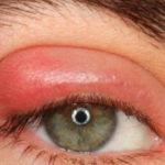 Метронидазол капли глазние: применение раствора и лечение