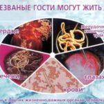 Паразитарние заболевания человека: профилактика болезней и инфекций