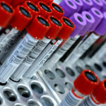Анализ на лямблии: что ето такое, как сдавать ПЦР и тест на лямблиоз у взрослих
