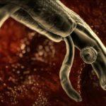 Гранатовие корки: полезние свойства, рецепти отвара от глистов и паразитов
