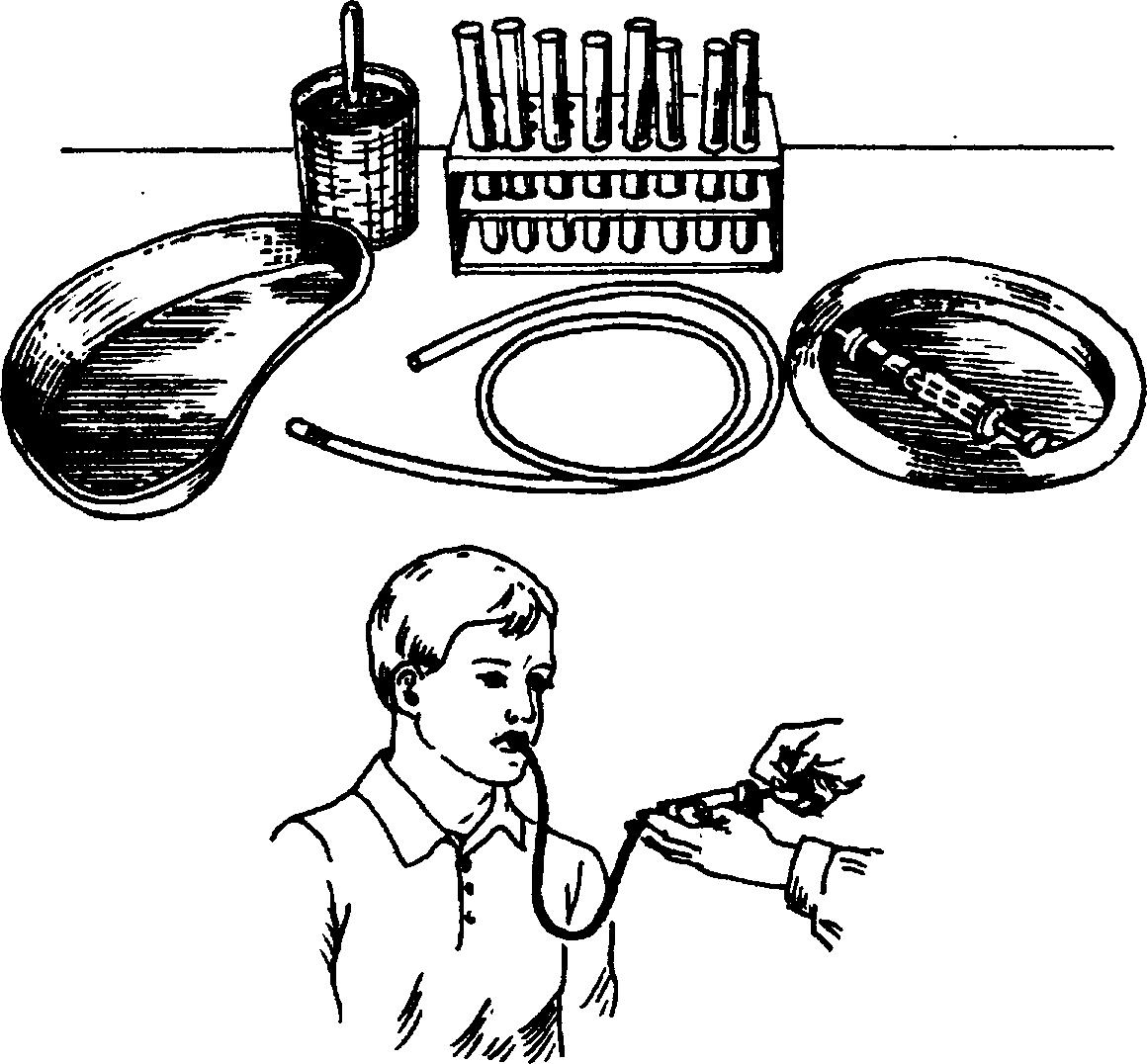 желчь от паразитов