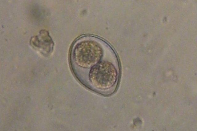 личинки паразитов в кале человека фото