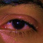офтальмомиаз симптомы