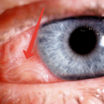 Признаки эхинококкоза при офтальмомиазе