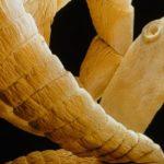 Куркума от паразитов: как принимать против глистов, отзиви о противопаразитарном средстве с мощним действием