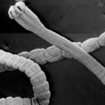 Дезинтокс: препарат от паразитов, отзиви о каплях Dezintox врачей
