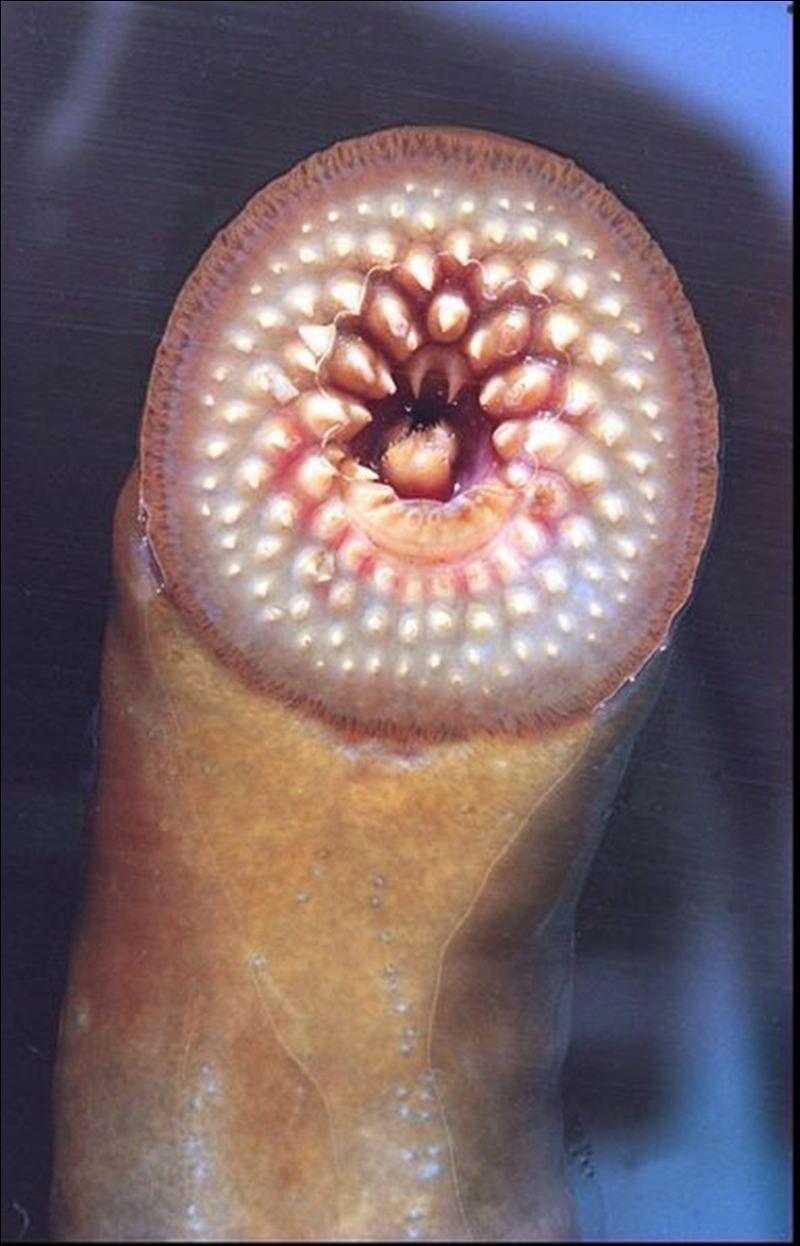 паразиты в человеке фото с описанием