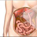 Лямблии в желчном пузире: фото и симптоми, как убрать и вивести паразитов из организма