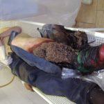 Черви в ране человека: опариши и личинки, лечение и фото