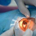 Операция по удалению личинок из зрительных органов