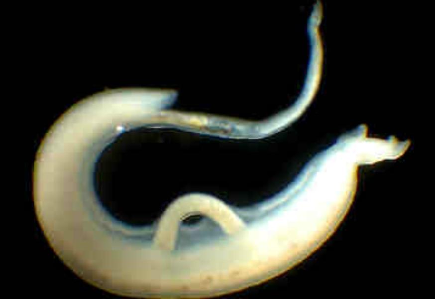 откуда берутся паразиты в организме человека