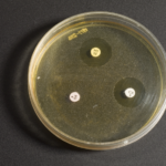 тест на чувствительность уреаплазмы к антибактериальным средствам.