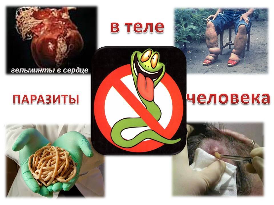 как убрать паразитов из организма народными средствами